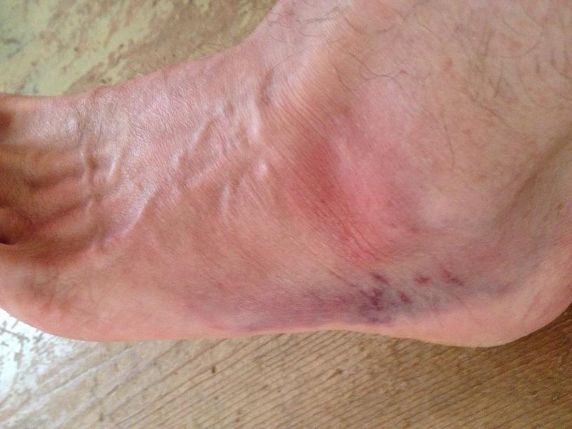 Fugly foot